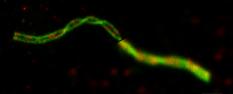 Formation en microscopie super-résolution